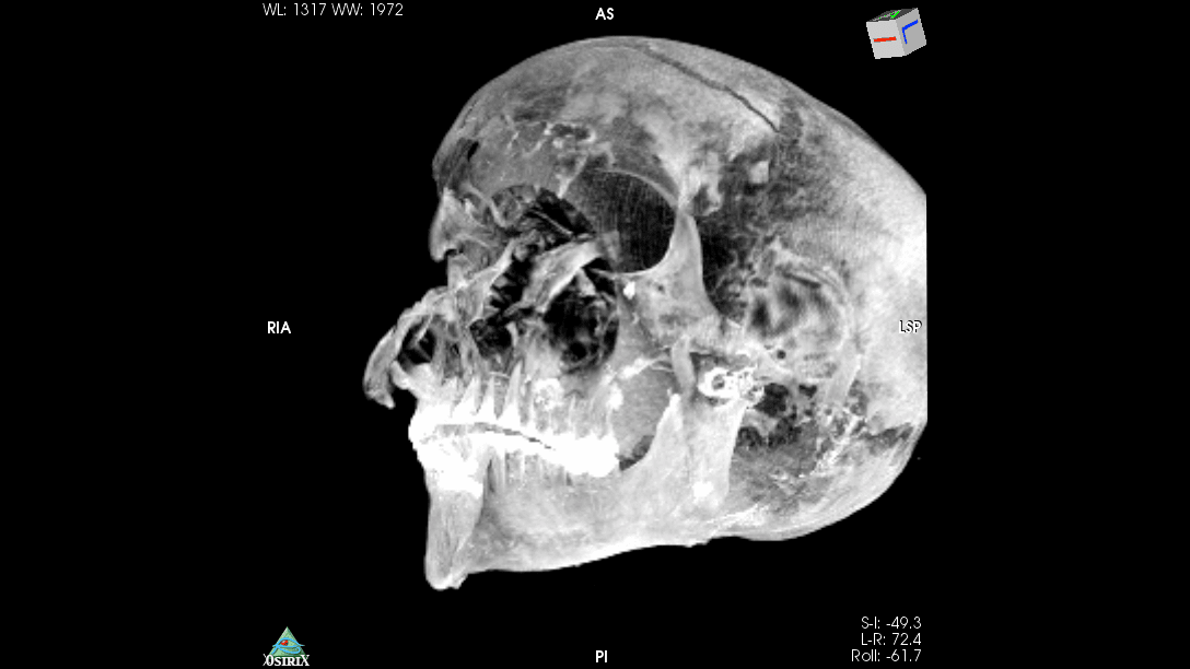 A CT scan of the skull of Seqenenre Taa II, whose facial wounds suggest a violent battlefiend death. (Photo © Sahar Saleem)