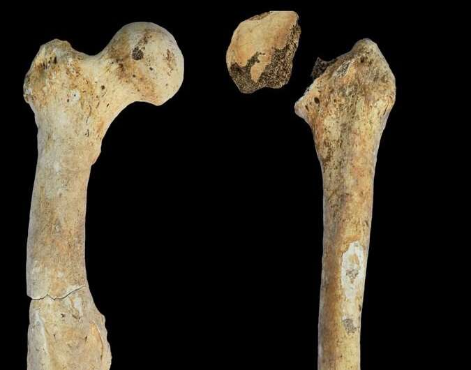 Right and left femoral bones of a male individual from the North Caucasus.