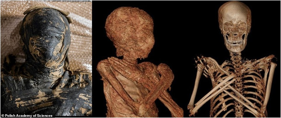World's First Pregnant Ancient Egyptian Mummy
