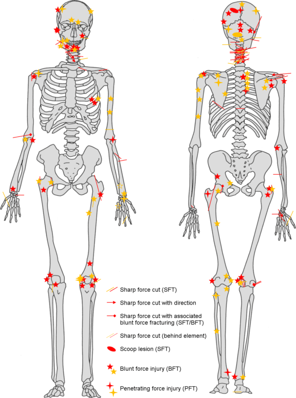 A diagram shows the extensive injuries suffered by one Crusader.