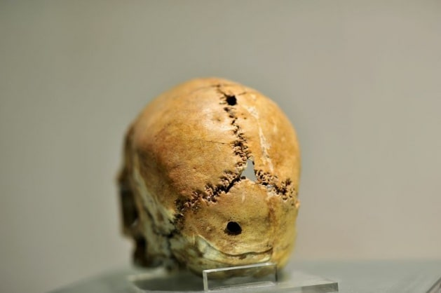 The skull, on which the first brain surgery was performed, is of great importance in terms of medical history and is exhibited in the Aksaray Museum.